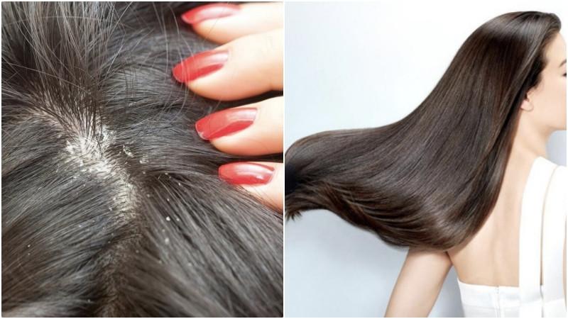 Vỏ bưởi giúp dưỡng tóc, trị gàu và trị rụng tóc, hói đầu
